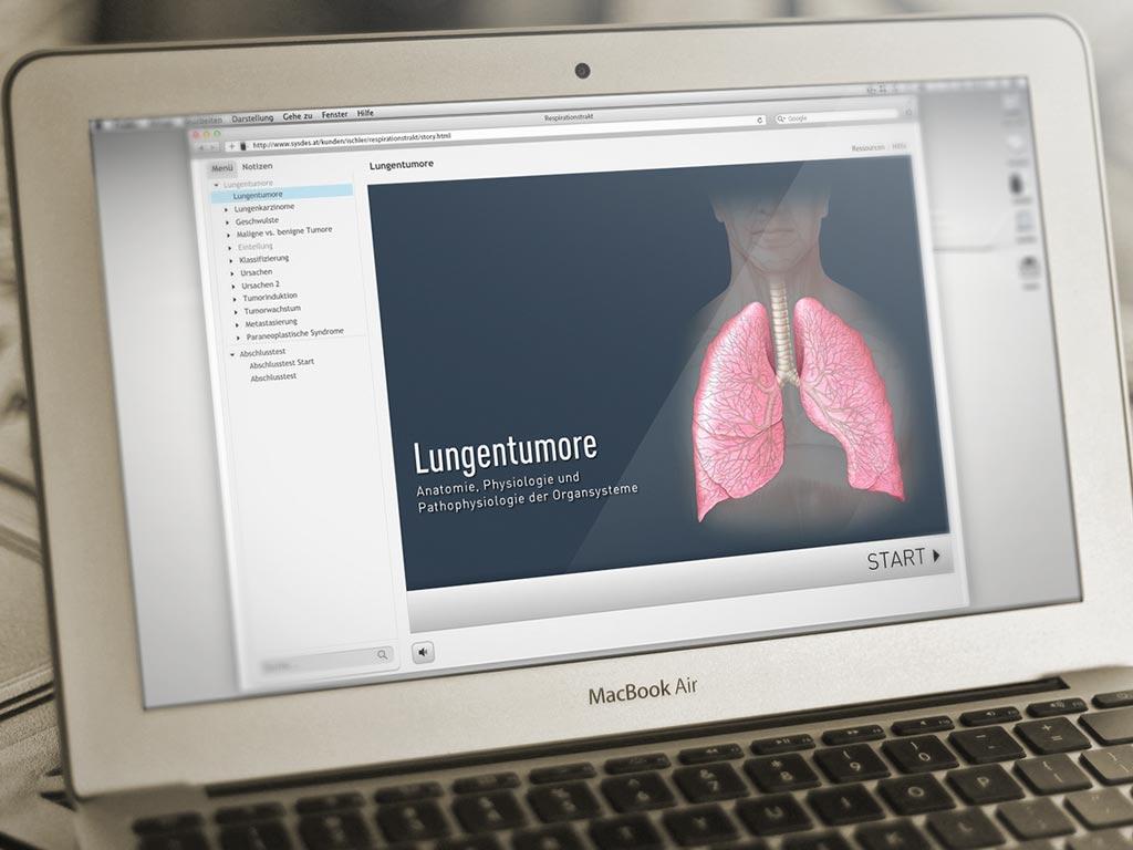 """iSMK Modul """"Tumoren der Lunge"""""""